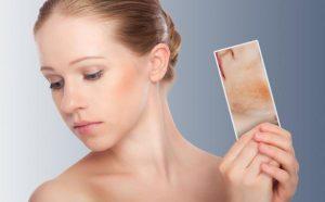 Celulite facial oque é? Como tratar?