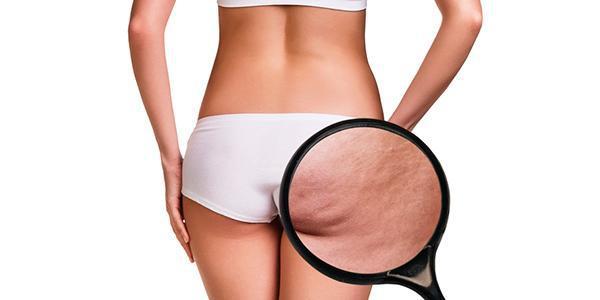 Veja Top 5 Tratamentos Para Detonar a Celulite