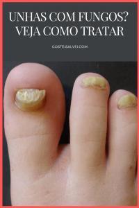 Read more about the article Unhas com fungos – Como tratar?