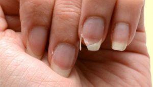 Unhas fracas? Aprenda como fortalecer as unhas com essas dicas rápidas