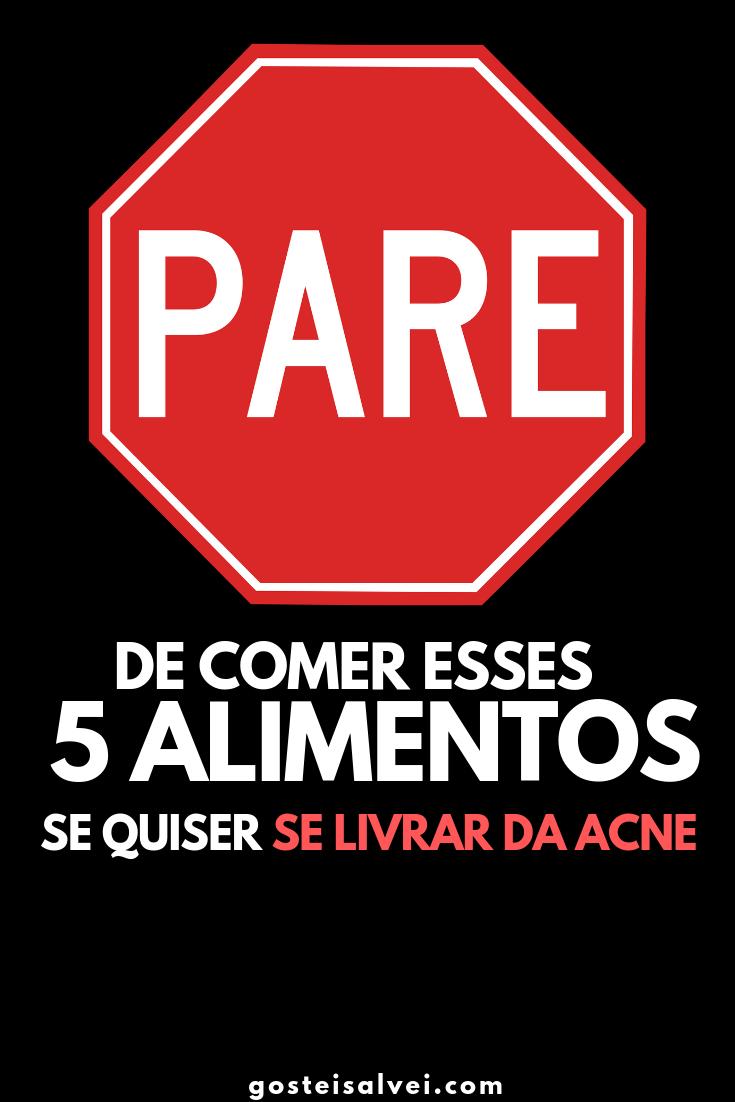 You are currently viewing Pare De Comer Esses 5 Alimentos Se Quiser Se Livrar Da Acne