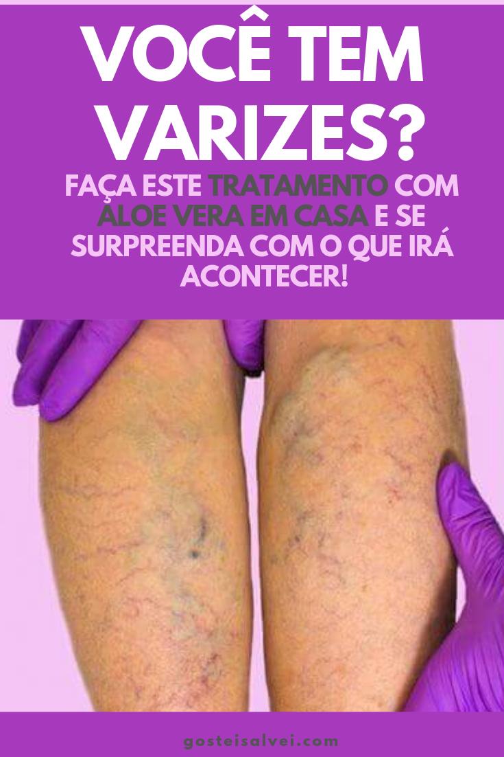 You are currently viewing Você Tem Varizes?Faça Este Tratamento Com Aloe Vera Em Casa e Se Surpreenda Com o Que Irá Acontecer!