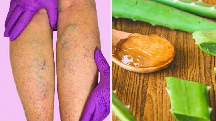 Você Tem Varizes?Faça Este Tratamento Com Aloe Vera Em Casa e Se Surpreenda Com o Que Irá Acontecer!