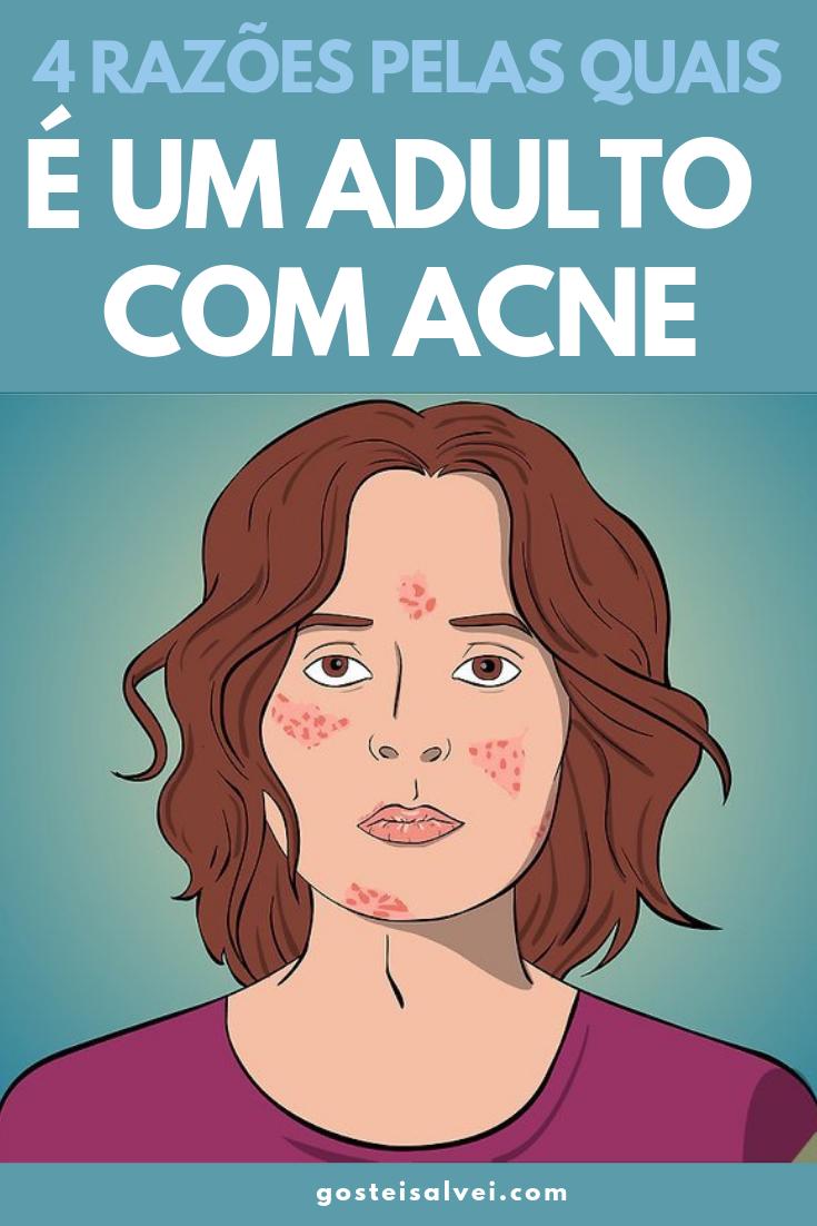 You are currently viewing 4 Razões Pelas Quais é Um Adulto Com Acne