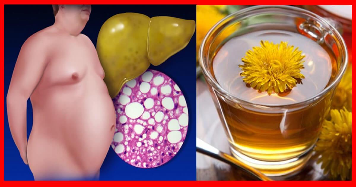 3 Remédios Caseiros Para Eliminar a Gordura Do Fígado