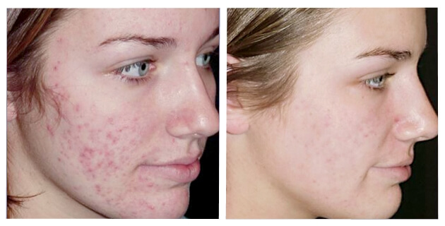 Elimine Todas As Verrugas, Manchas e Espinhas Com Essas Receitas Caseiras Para a Pele