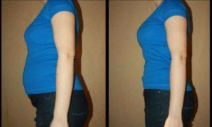 Conheça a Dieta Thonon e Perca 10 Quilos em 3 Semanas, Resultados Rápidos e Incríveis