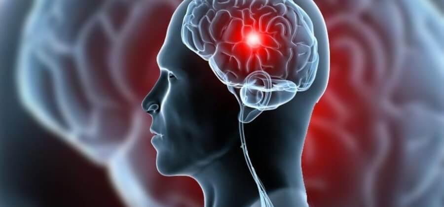 Aprenda o Que Fazer Em Caso De Acidente Vascular Cerebral: Você Pode Salvar Uma Vida!