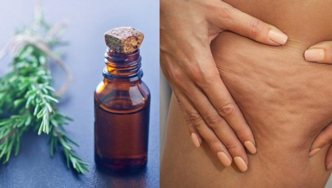 Aprenda a Fazer Esse Remédio De Alecrim e Elimine Varizes, Dores Musculares e Celulite