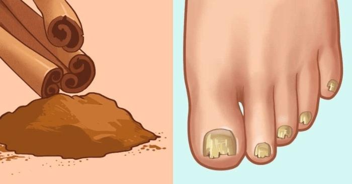 Aprenda a Usar a Canela Para Eliminar Fungos e Coceira Dos Pés