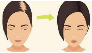 Use Bicarbonato De Sódio Para Seu Cabelo Crescer Mais Rápido