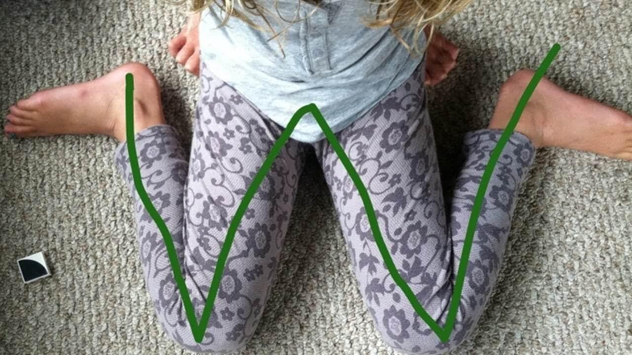 Muito cuidado se o seu filho costuma se sentar desta maneira!