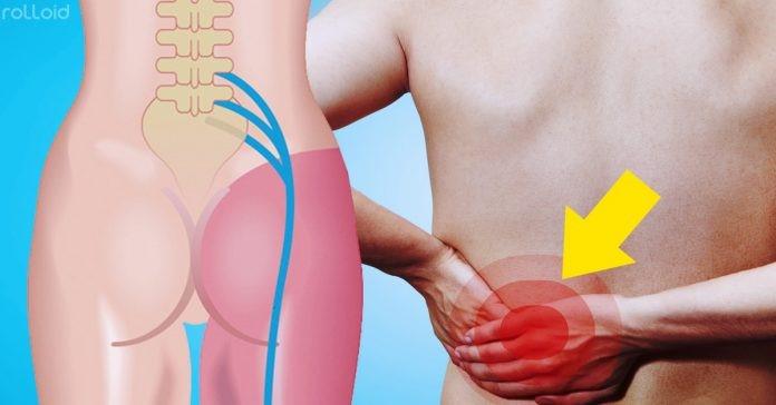 7 Remédios naturais para aliviar a dor no nervo ciático