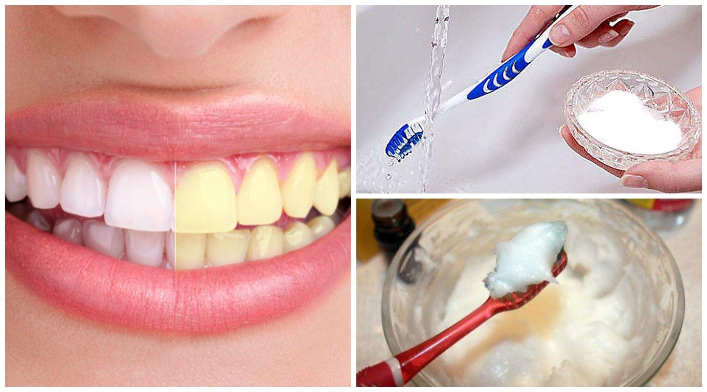 3 Misturas caseiras que vão deixar seus dentes mais brancos