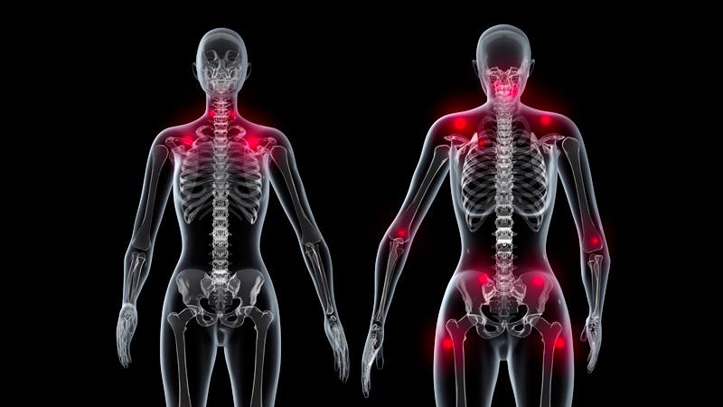 40 Sintomas de fibromialgia que qualquer pessoa com dor muscular deve saber!