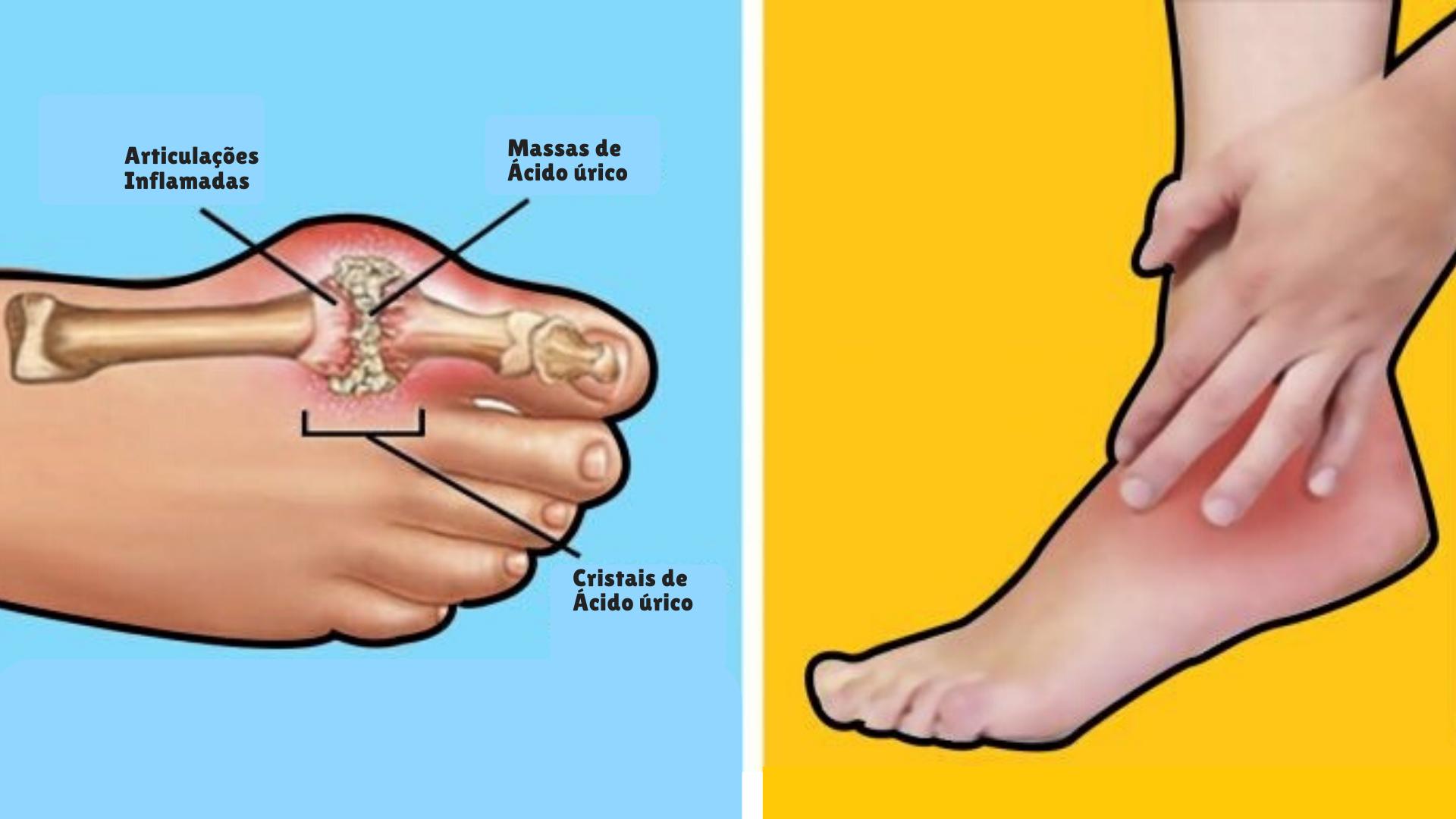 Você conhece os efeitos nocivos do ácido úrico no seu corpo?