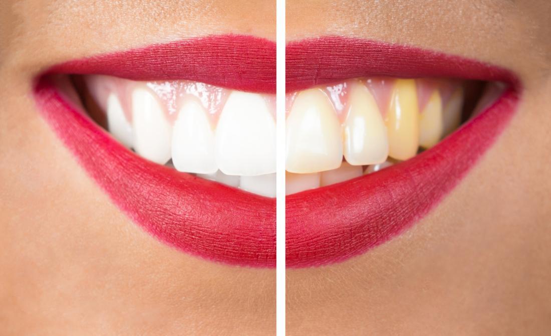 Uma única gota desse ingrediente clareia os dentes e elimina mau hálito em apenas 3 usos!