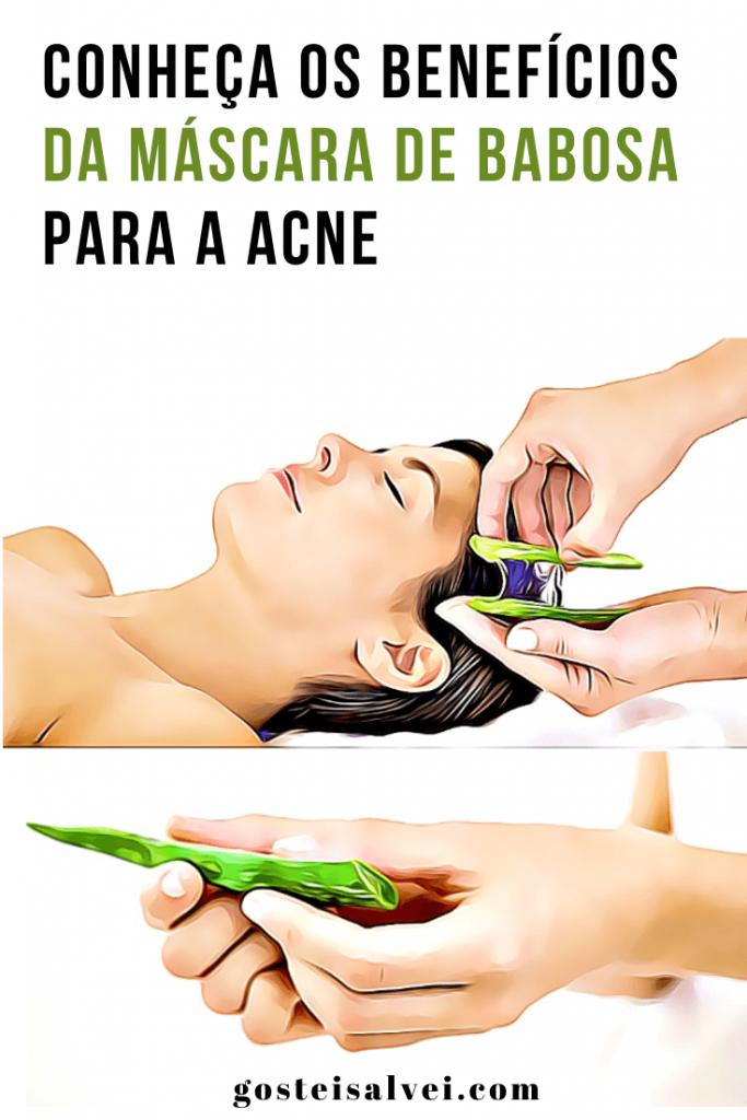 Conheça os benefícios da máscara de babosa para a acne