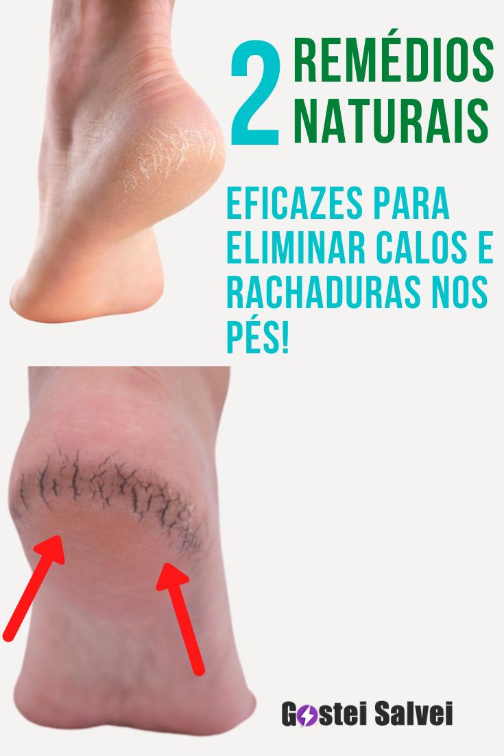 2 Remédios naturais eficazes para eliminar calos e rachaduras nos pés!