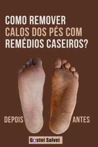 Como remover calos dos pés com truques caseiros?